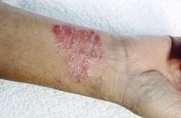 """""""Eczema"""""""